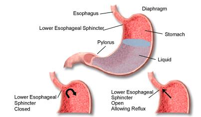 Barrett's esophagus iPain