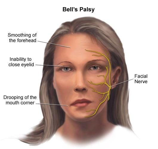 bell's palsy - ipain international pain foundation, Human Body